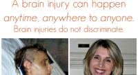 Brain injury awareness: It can happen anytime, anywhere to anyone #TBI